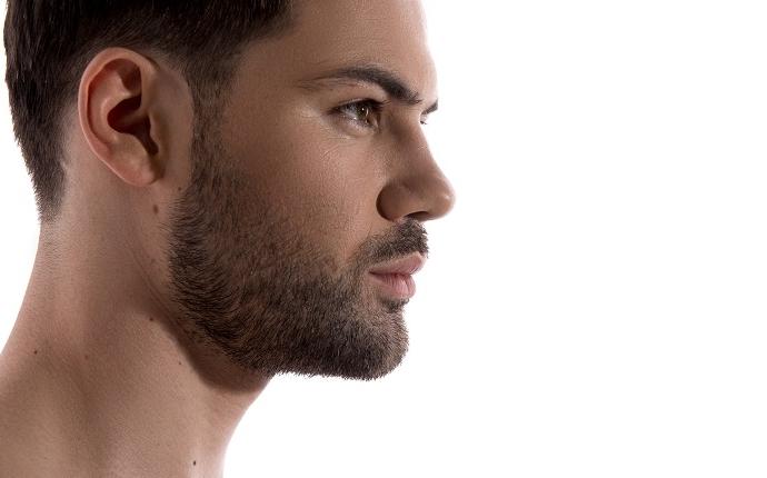 Présentation Implants de barbe