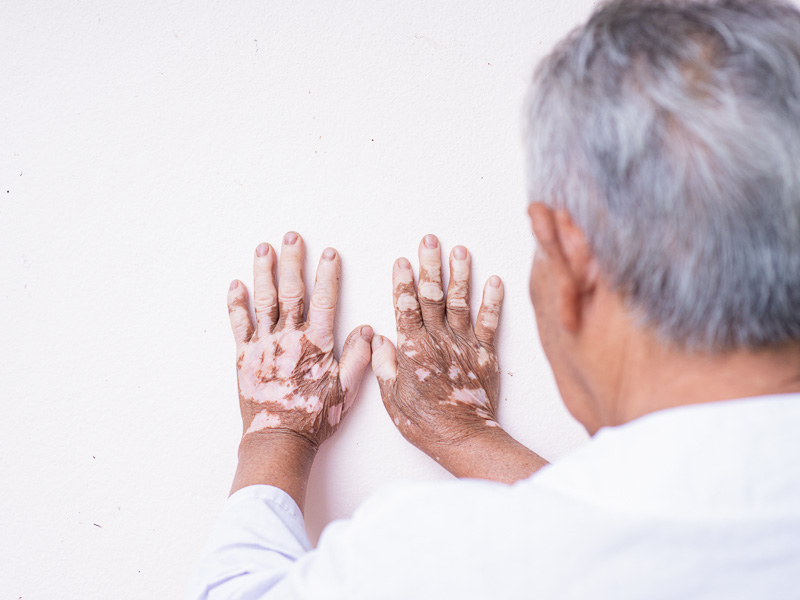 Avantages du traitement laser contre le vitiligo