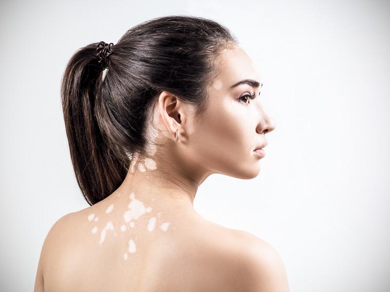 Résultats après traitement contre le vitiligo