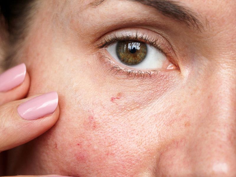 Rosacee couperose à la Clinic Lémanic